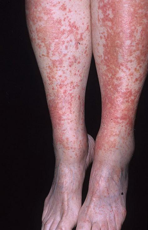 alergiczne zapalenie naczyń krwionośnych