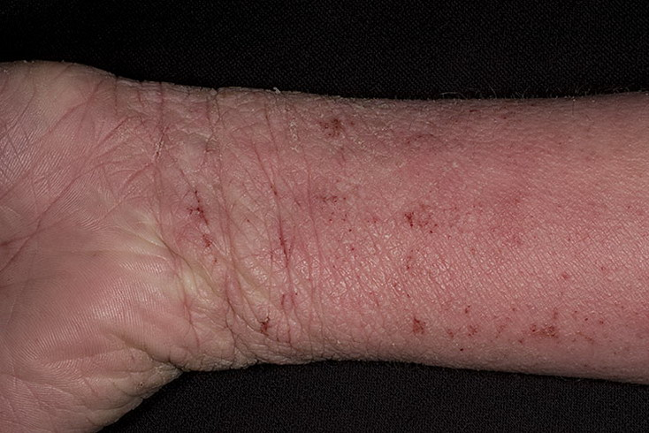 atopowe zapalenie skóry na nadgarstkach