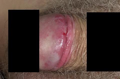 bakteryjne zapalenie