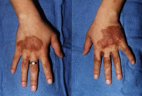 berloque dermatitis na dłoniach