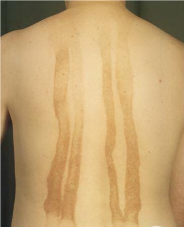 berloque dermatitis na plecach