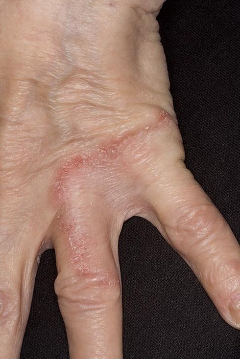 choroba grzybicza palcy