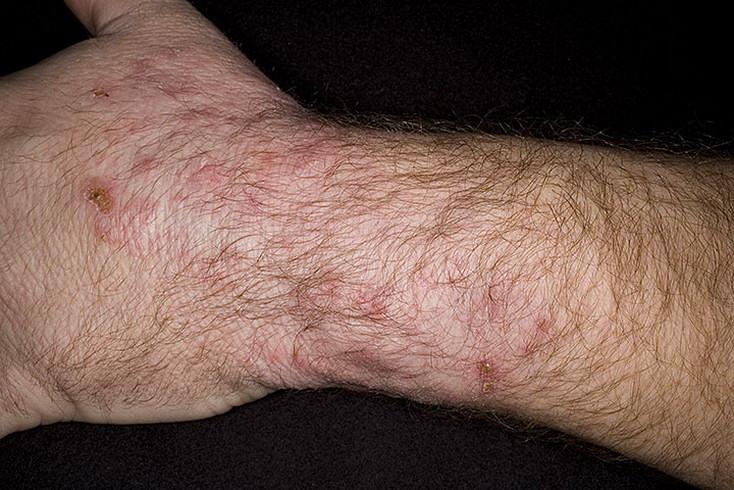 choroba grzybicza ręki