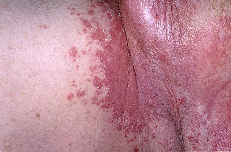 choroby pachwin