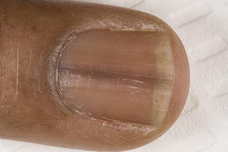 ciemne paznokcie choroba