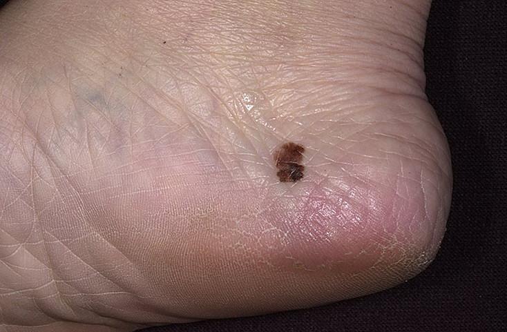 czerniak na stopie