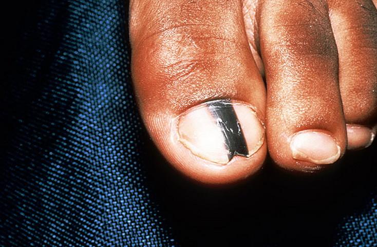 czerniak paznokcia jak wyglada