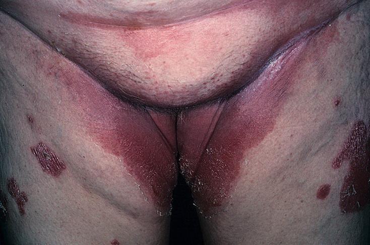grzybica miejsc intymnych