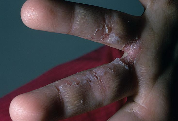 Грибок между пальцами в домашних условиях как лечить 352