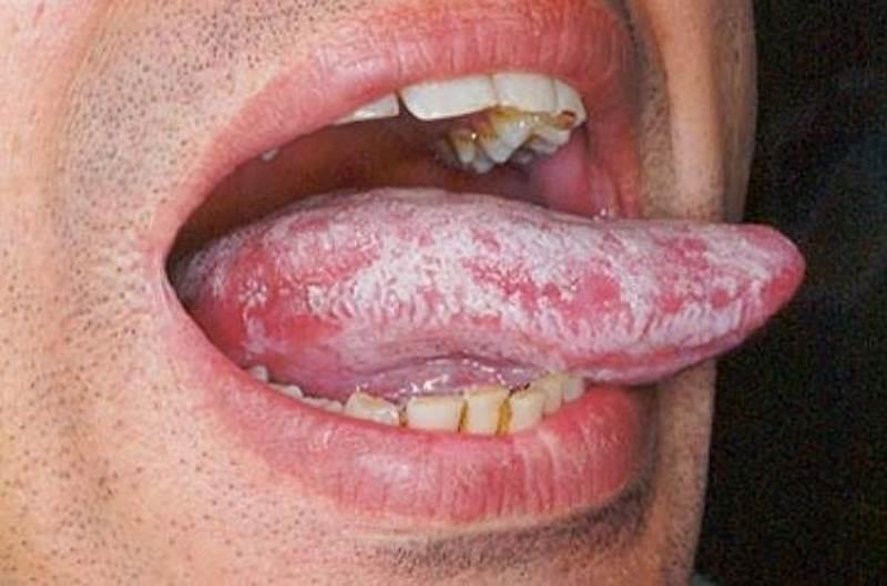 grzybica u mężczyzn jama ustna