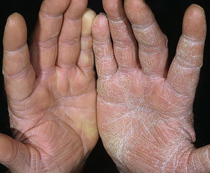 Grzybicze choroby skóry