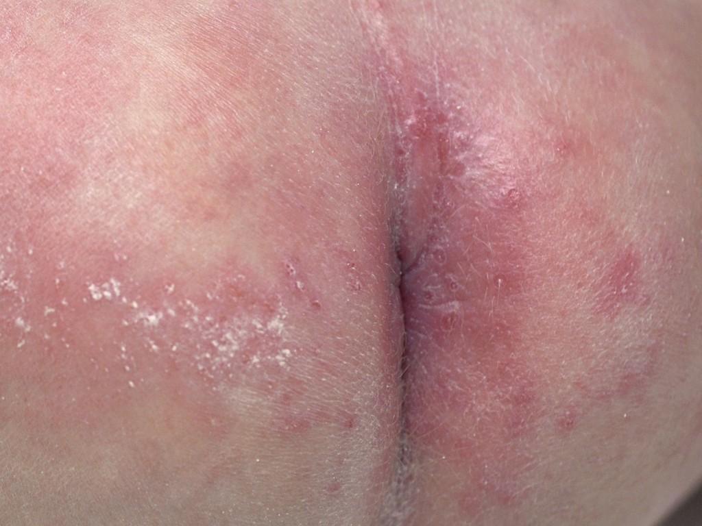 jak wygląda pieluszkowe zapalenie skóry