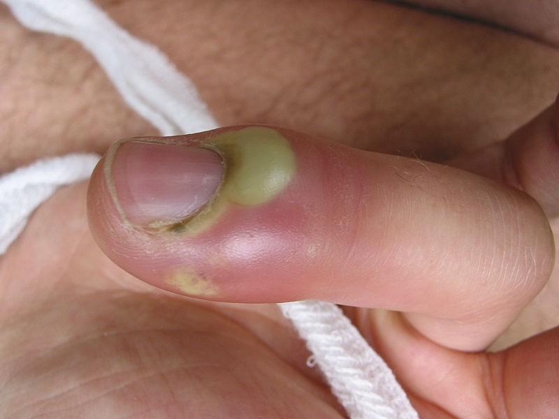 jak wygląda zakażenie rany zdjecia