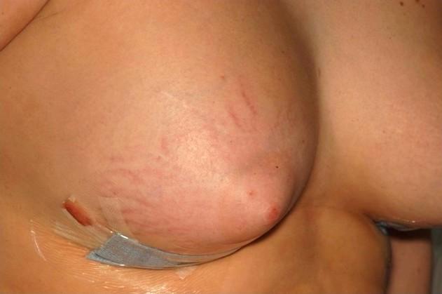 jak wyglądają rozstępy na piersiach