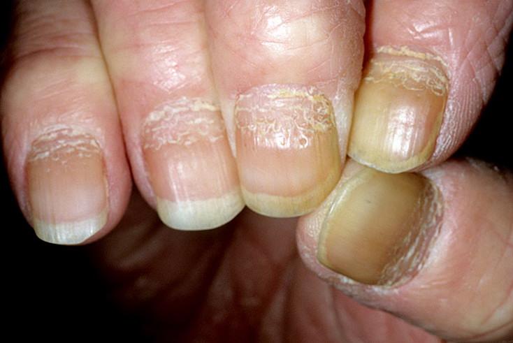 łuszczyca paznokci rąk zdjęcie