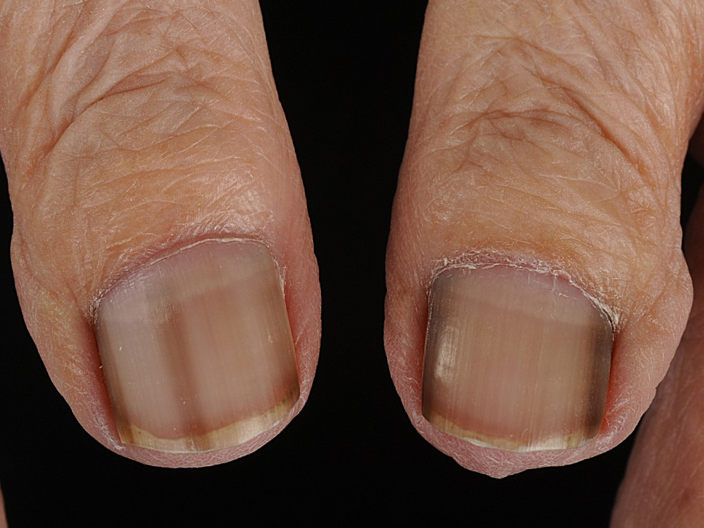 huid melanoom herkennen