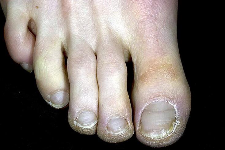 odmrożenia duży palec