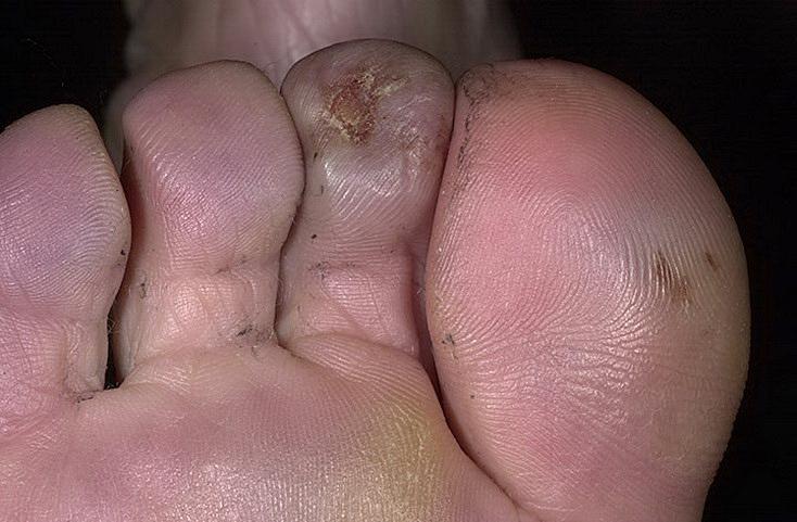 odmrożenia noga palec