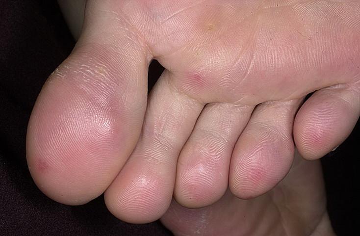 odmrożenia skóry leczenie