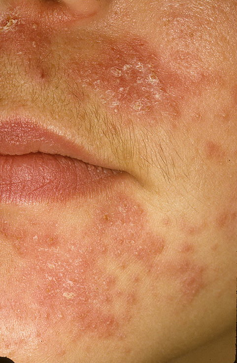 Чем лечить пероральный дерматит на лице в домашних условиях 555