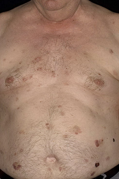 pemfigoid na brzuchu