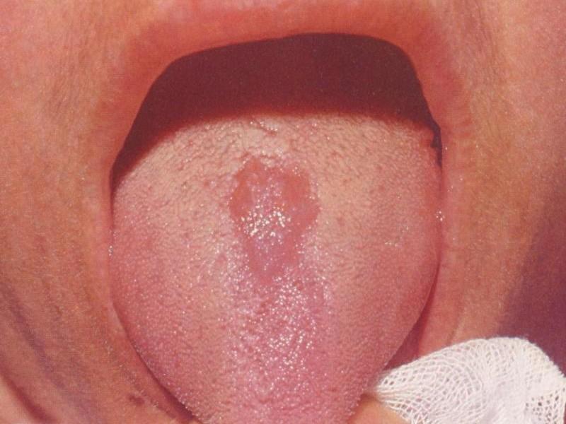 Romboidalne środkowe zapalenie języka
