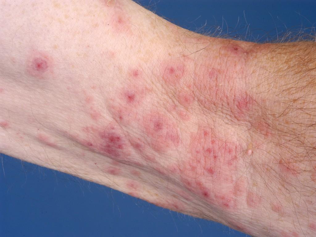 psoriasis inversa huidziekten