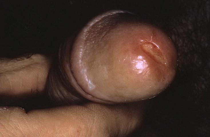 воспаление уретры при трипере