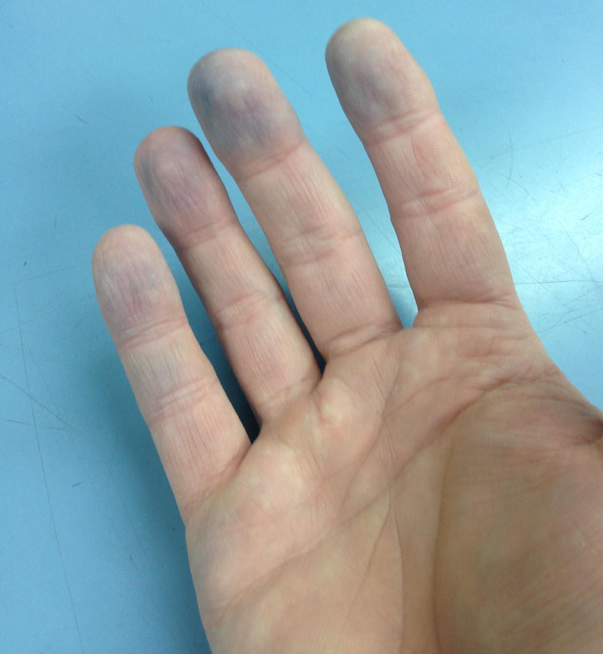 sine opuszki palców u rąk