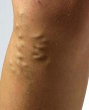verstopte aderen symptomen benen