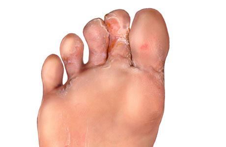 stopa atlety objawy foto