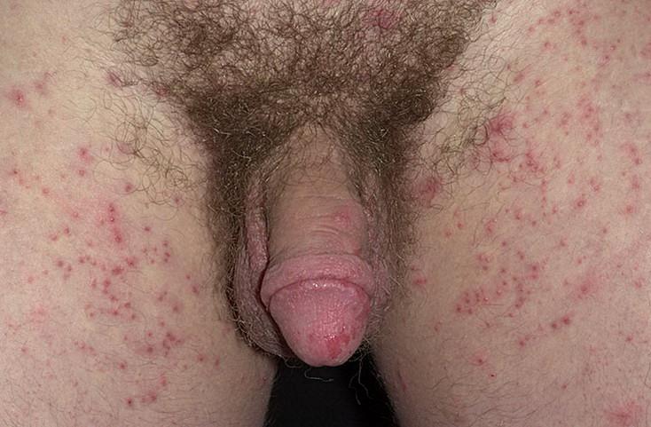 świerzb okolic intymnych objawy