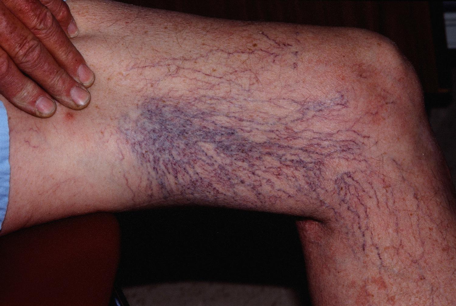 teleangiektazje na nogach