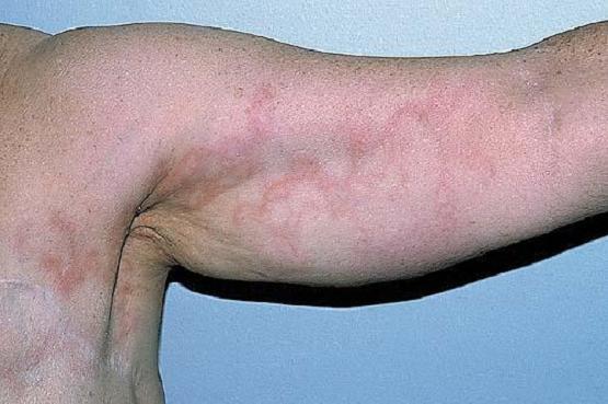 zapalenie naczyń chłonnych na bicepsie