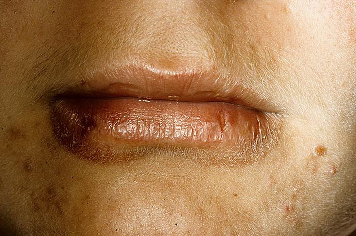 zapalenie skóry koło ust