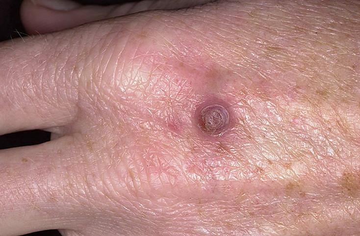 пиогенная гранулема фото лечение