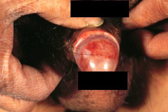 Zapalenie żołędzia Zoona PCB