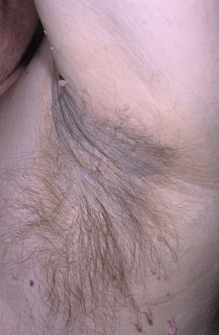Acanthosis nigrican