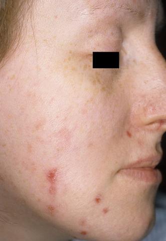 acne neurotica
