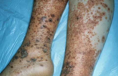 alergiczne zapalenie naczyń leczenie