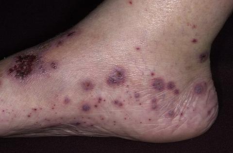 alergiczne zapalenie naczyń stopa