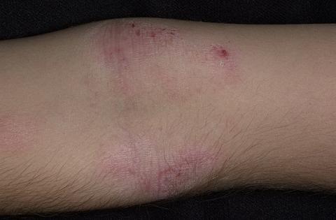 atopowe zapalenie skóry kolana