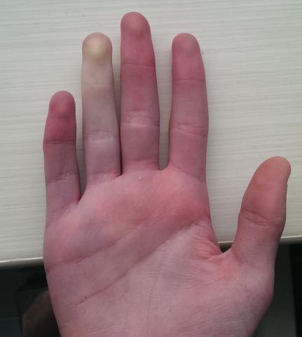 biały palec u ręki