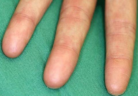 brak odcisków palców - adermatoglyphia
