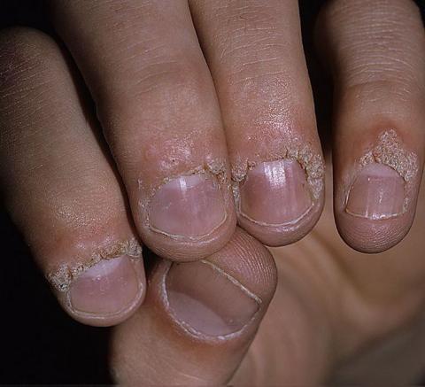 brodawki na palcach