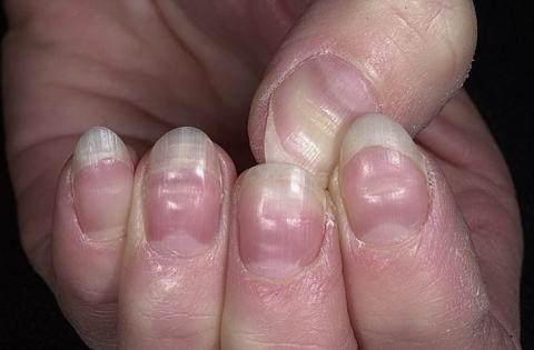 bruzdy na paznokciach