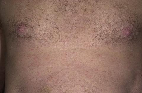 choroba grovera wysypka na skórze