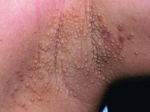 choroba gruczołów potowych