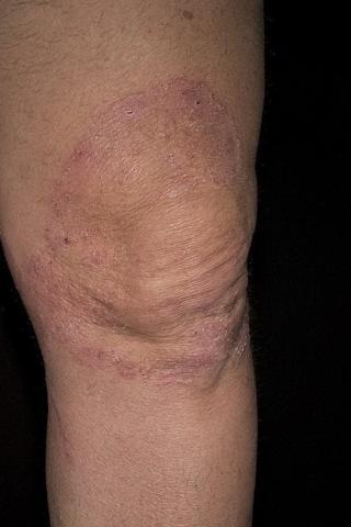 choroba grzybicza kolana