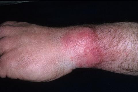 choroba grzybicza nadgarstek